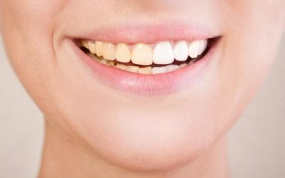 Alimenti che aiutano a contrastare l'ingiallimento dei denti